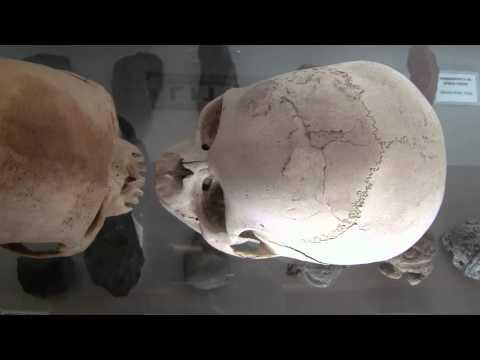 20120702114642 skull comparison