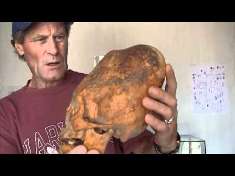 Enormous Cone Head Of Paracas Peru: Lost Human History Returns