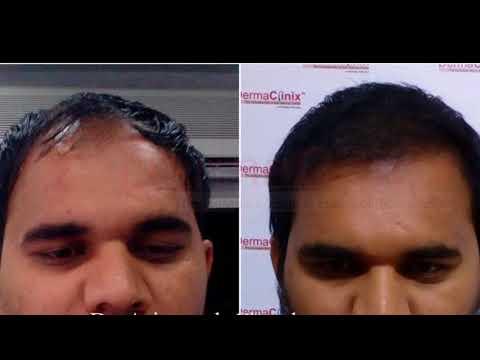 Hair Transplant Before After Photos @ DermaClinix Chennai | Dr. Ariganesh Chandrasegaran