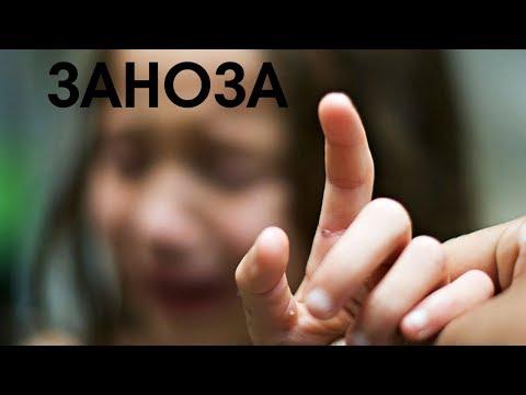 Заноза [Аудиокнига, NikОsho]