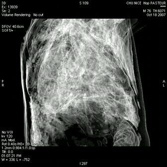 pneumobody (recon 3D)