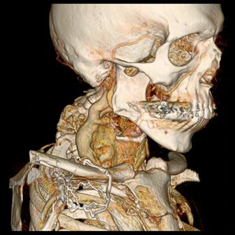 vertebrae malformation