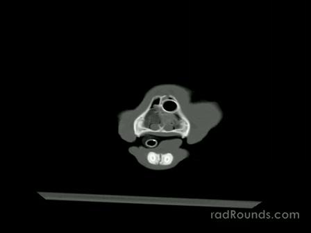 Veterinary Radiology - CT of Head Trauma in Kitten
