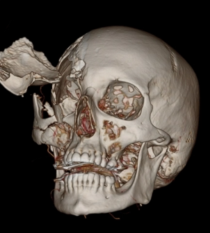 Complex Skull Fracture and Head Injury status post trampling by horse.