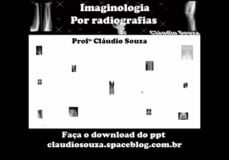 Aula 7 - Imaginologia por radiografias, Abdome. Profº Claudio Souza
