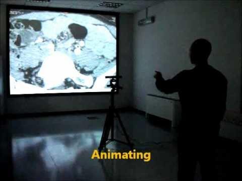 Xbox Kinect-based radiology & medical image exploration