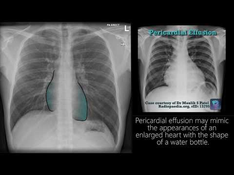 Radiograph Tutorial: Chest X-ray / CXR | Radiology Nation