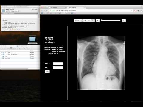 Nephosity Releases Easy Drag and Drop DICOM Image Viewer for the Web Browser