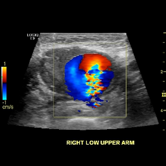 Pseudoaneurysm on Color Doppler Flow of Brachial Artery