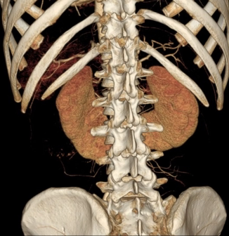 3D Volume Rendering of Horseshoe Kidney