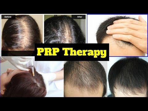 PRP Therapy in Delhi, PRP Treatment for hair loss in Delhi by Best Dermatologist in Delhi
