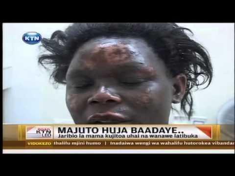 Mwanamke alipotaka kujiua kwa kujichoma moto yeye na wanae kutokana na ugumu wa maisha
