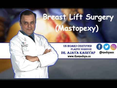 Breast Lift (Mastopexy) Surgery by Dr. Ajaya Kashyap, Delhi, India