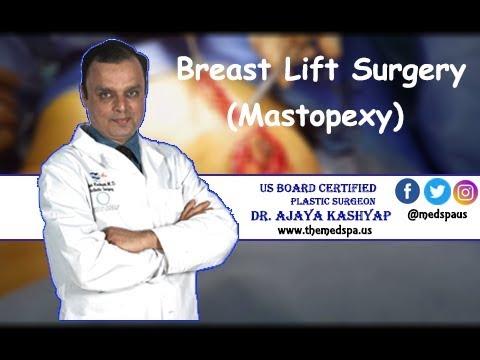 Breast Lift (Mastopexy) Surgery by Dr. Ajaya Kashyap, Delhi, India