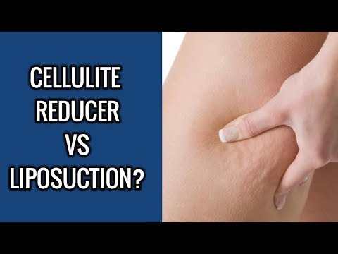 Cellulite Reducer or Liposuction