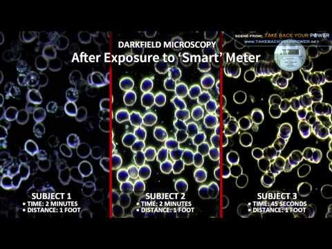 "Shocking ""Smart"" Meter Effects On Human Blood"