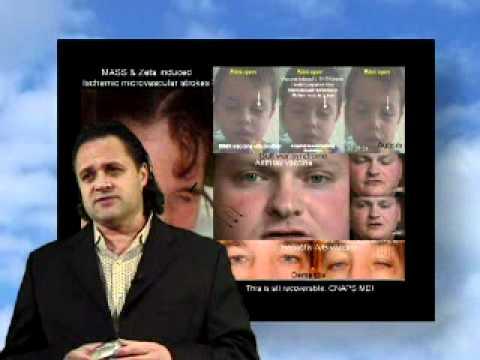 Tolerance Lost Vol 1/3 - 3of16 - Moulden