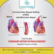 Coronary artery bypass grafting (CABG) Surgery