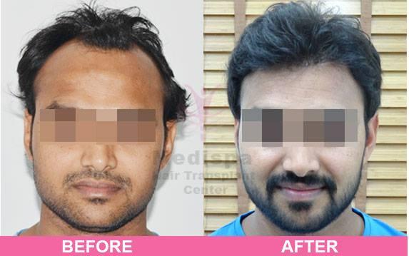 Medispa Hair Transplant Clinic