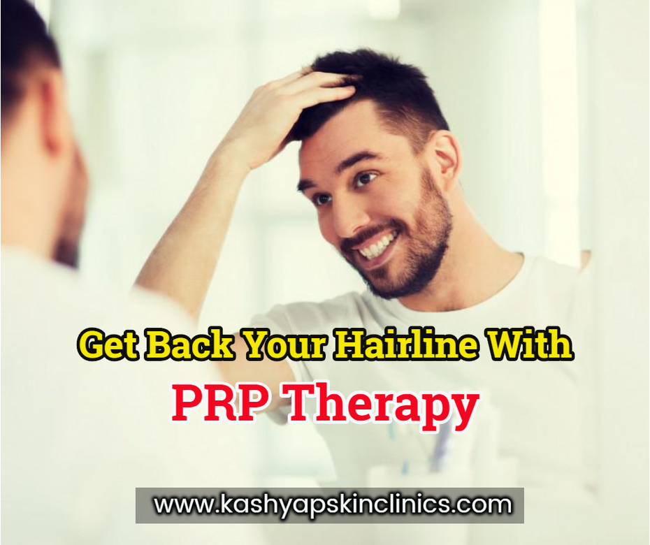 Get back your hairline with PRP Therapy