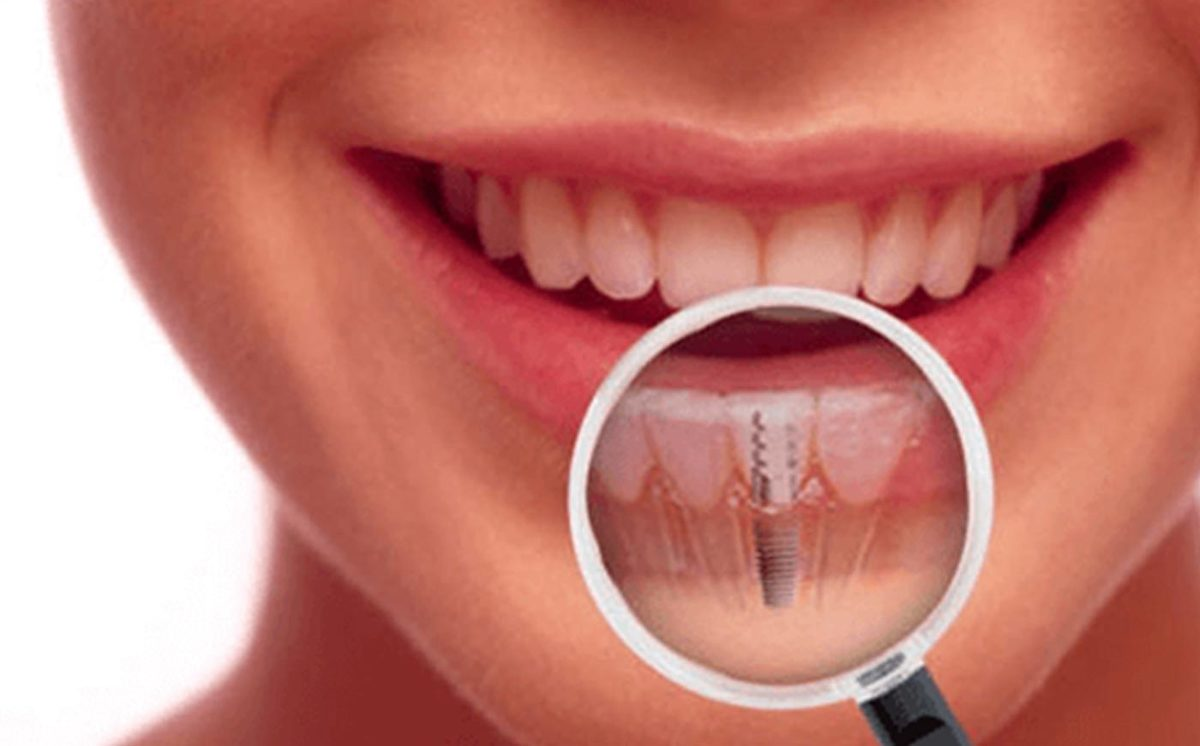 What Is The Dental Implant Treatment? – Everything You Need To Know