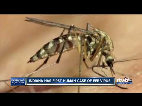 Indiana has first human case EEE virus
