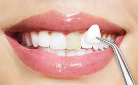 What to Know Before You Get Dental Veneers.