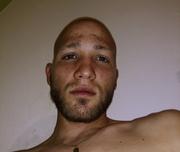 Still full scalp hair loss