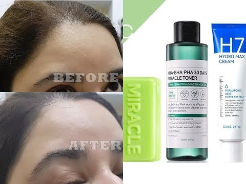 SOME BY MI AHA BHA PHA 30 Days Miracle Toner Review | Korean Skincare