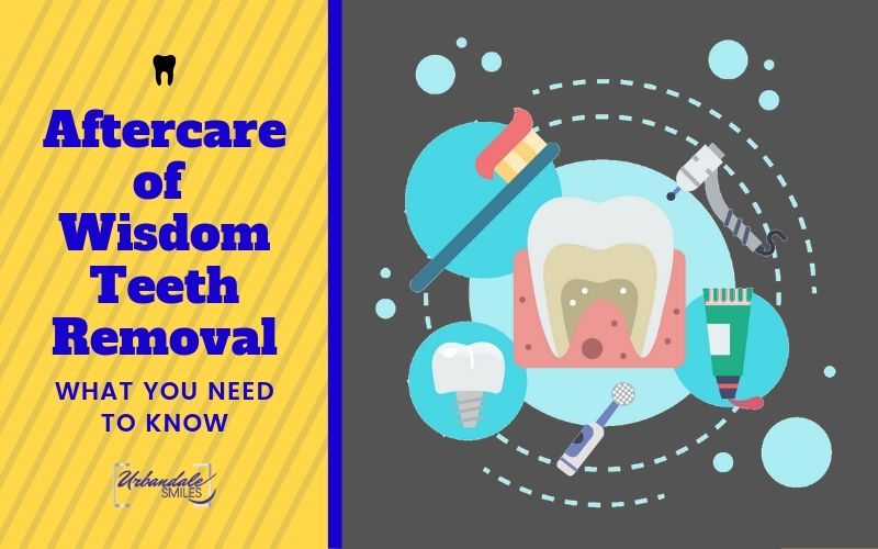 What You Need to Know About Aftercare of Wisdom Teeth Removal