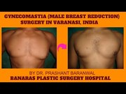 Males Can Opt For Surgery to Reduce Breast Size