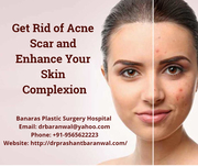 Get Rid of Acne Scar and Enhance Your Skin Complexion