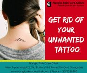 Best Methods for Tattoo Removal - Nangia Skin Care Clinik