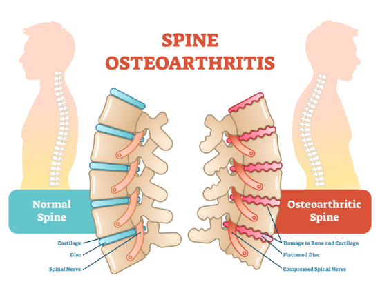 Best NECK PAIN TREATMENT without Surgery at Capri Spine | best spine doctor