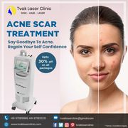 Say Goodbye to ACNE with AcuPulse® Laser and regain your confidence