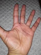 Hand Eczema - Inside  (Developer Coaching Client)