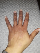 January - Hand and Lower Leg Eczema Client
