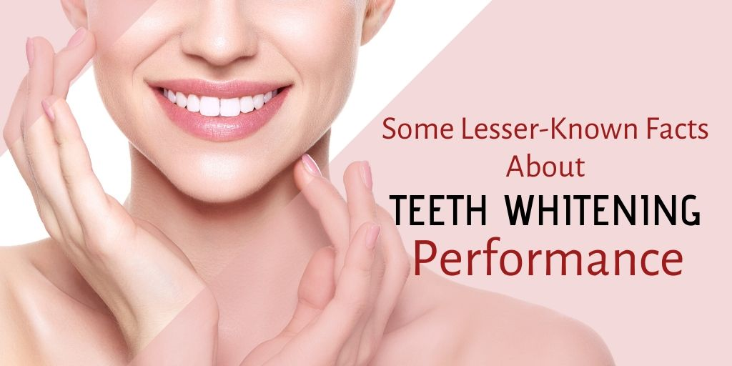 What You Should Know About Performance of Teeth Whitening?