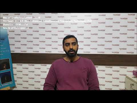 Best Hair Transplant in INDIA | Patient Review - DermaClinix
