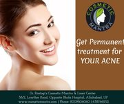 Best Clinic for acne scar treatment in Allahabad