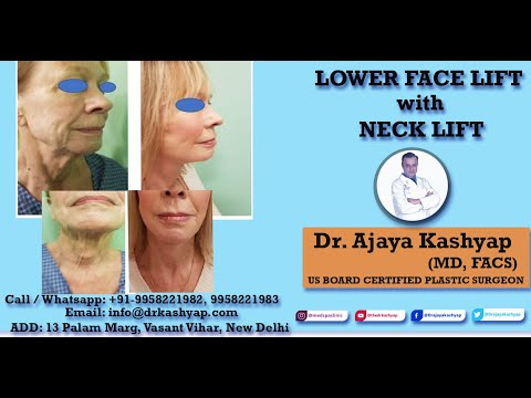 Lower Face Lift with Neck Lift Surgery by Dr Kashyap