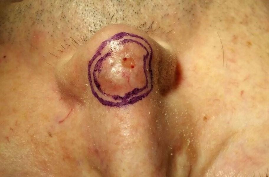 CBC in nasal tip and dorsum - Bilobed flap