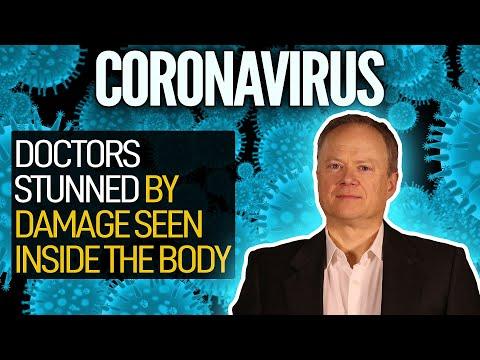 Coronavirus: Doctors Stunned By Damage Seen Inside The Body