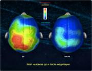 Мозг человека во время медитации