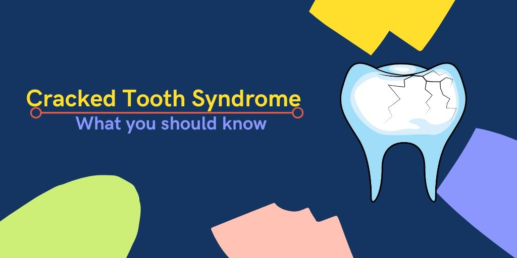Cracked Tooth Syndrome- What you should know