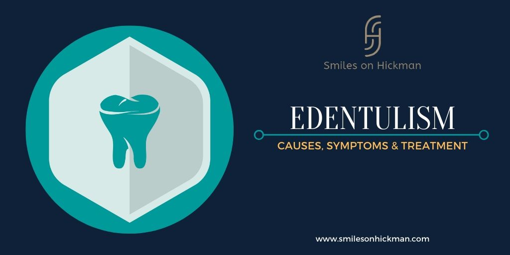 Causes, Symptoms, and Treatment of Tooth Loss