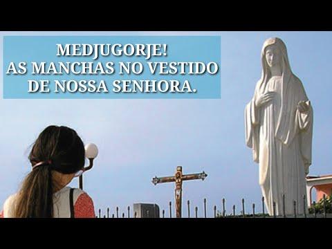 Medjugorje, As Manchas No Vestido De Nossa Senhora.