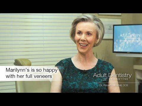 Full Porcelain Dental Veneers, Charlotte NC - Marilynn's Story