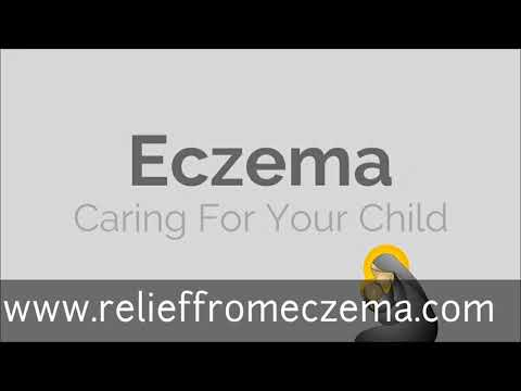 7 Eczema Treatments For Children - Eczema Treatments For Children - Caring For Your Child with Eczema - Baby Eczema Treatments