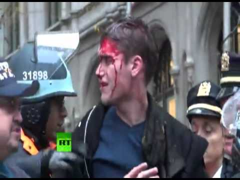 Graphic video: OWS protester covered in blood after baton head hit